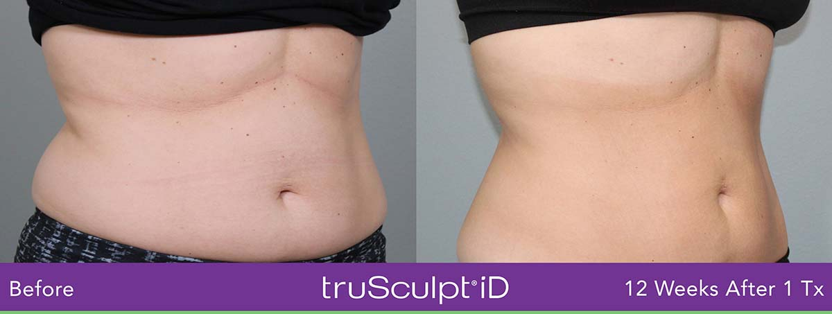 Trusculpt Id Woman Belly Before And After 6