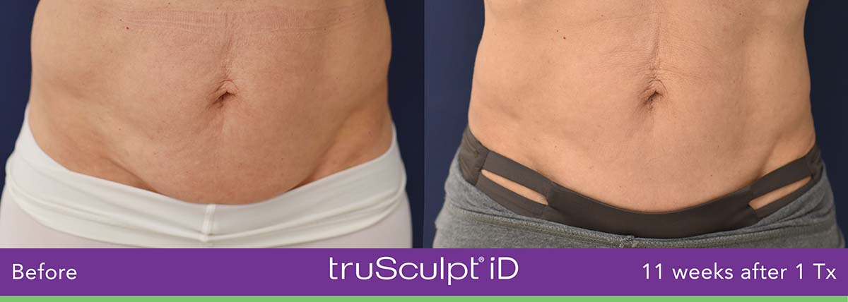 Trusculpt Id Woman Belly Before And After 7
